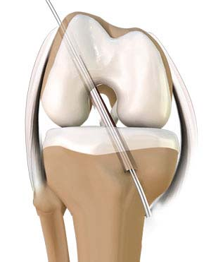 Knee Reconstruction